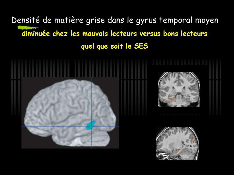 NR>DYS Anomalie de temps de lecture (z-score) Densité de matière grise dans le gyrus temporal moyen diminuée chez les mauvais lecteurs versus bons lecteurs quel que soit le SES