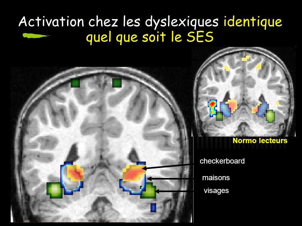 Activation chez les dyslexiques identique quel que soit le SES maisons visages checkerboard Normo lecteurs