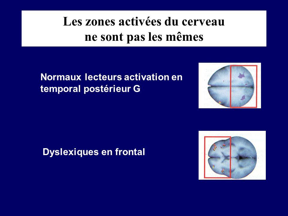 Les zones activées du cerveau ne sont pas les mêmes Normaux lecteurs activation en temporal postérieur G Dyslexiques en frontal
