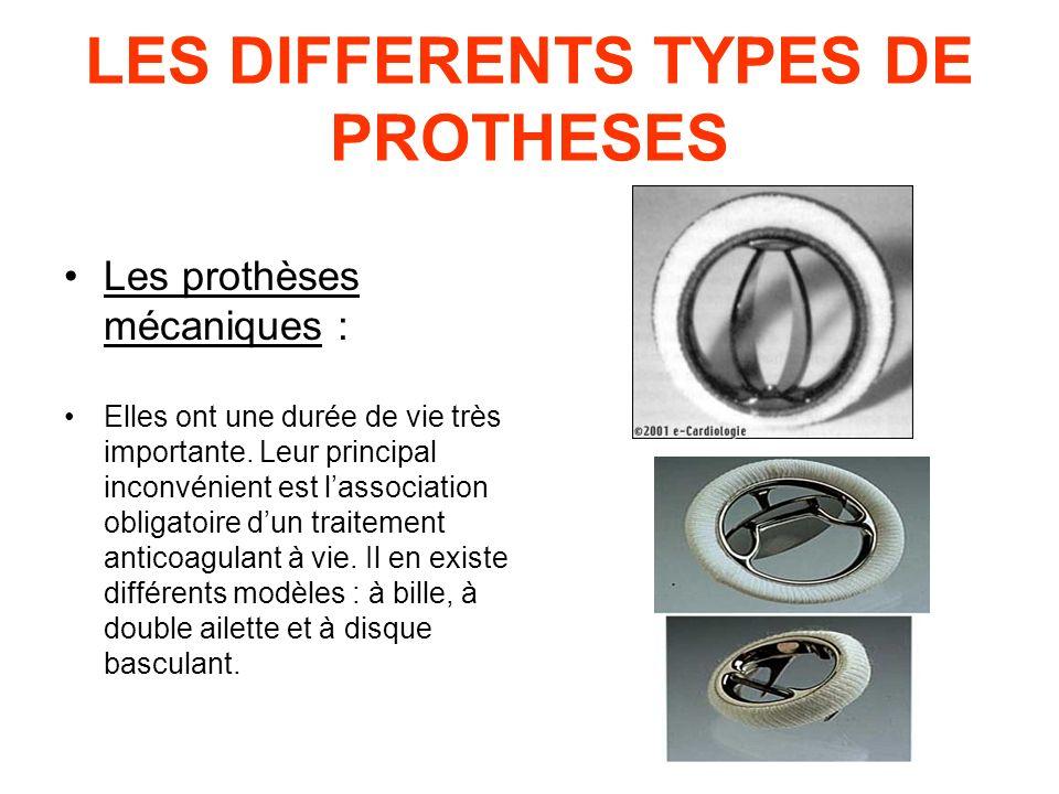 LES DIFFERENTS TYPES DE PROTHESES Les prothèses mécaniques : Elles ont une durée de vie très importante. Leur principal inconvénient est lassociation