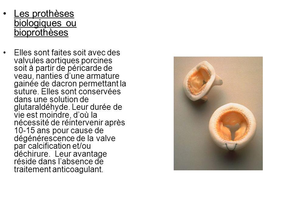 Les prothèses biologiques ou bioprothèses Elles sont faites soit avec des valvules aortiques porcines soit à partir de péricarde de veau, nanties dune