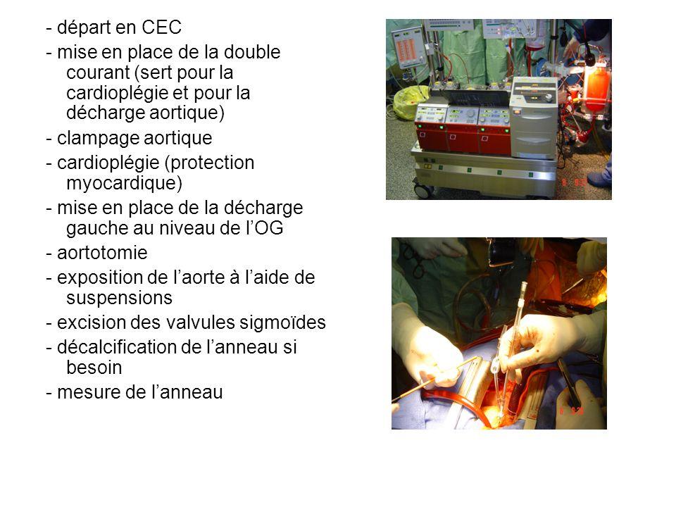 - départ en CEC - mise en place de la double courant (sert pour la cardioplégie et pour la décharge aortique) - clampage aortique - cardioplégie (prot