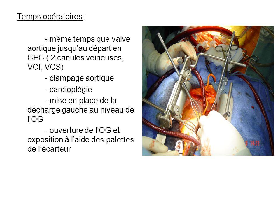 Temps opératoires : - même temps que valve aortique jusquau départ en CEC ( 2 canules veineuses, VCI, VCS) - clampage aortique - cardioplégie - mise e
