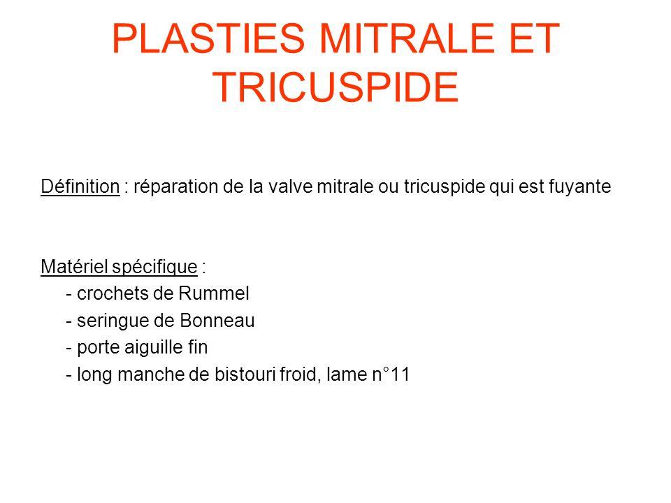 PLASTIES MITRALE ET TRICUSPIDE Définition : réparation de la valve mitrale ou tricuspide qui est fuyante Matériel spécifique : - crochets de Rummel -