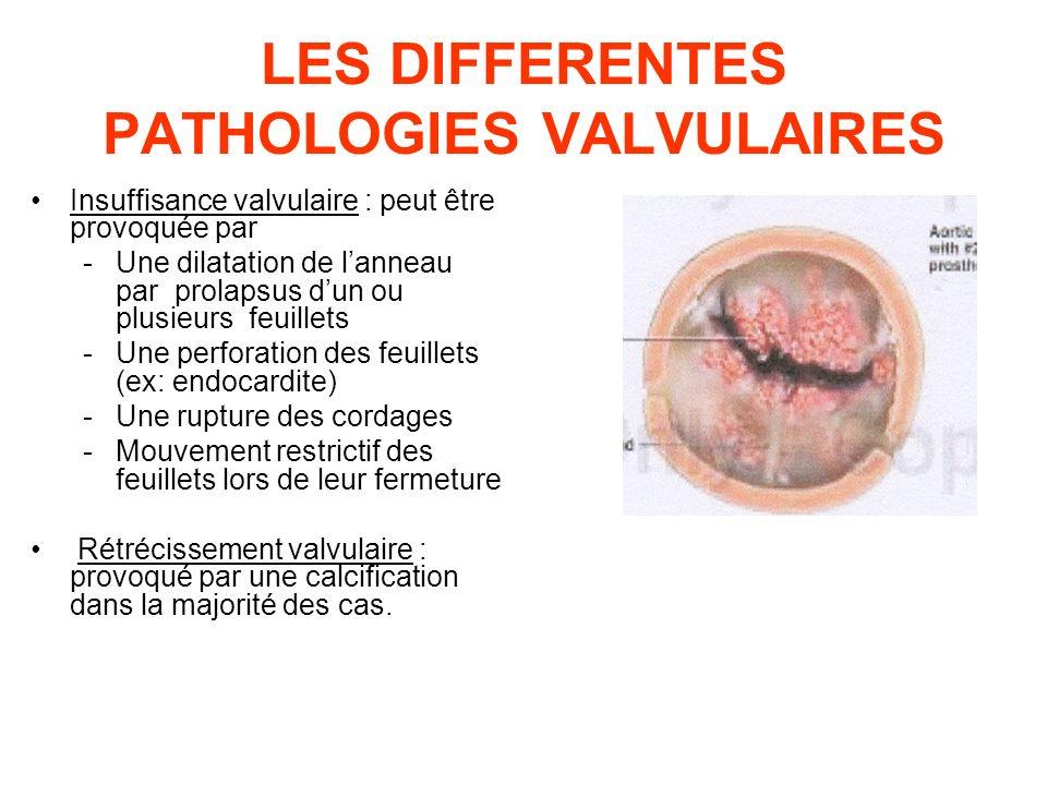 LES DIFFERENTES PATHOLOGIES VALVULAIRES Insuffisance valvulaire : peut être provoquée par -Une dilatation de lanneau par prolapsus dun ou plusieurs fe