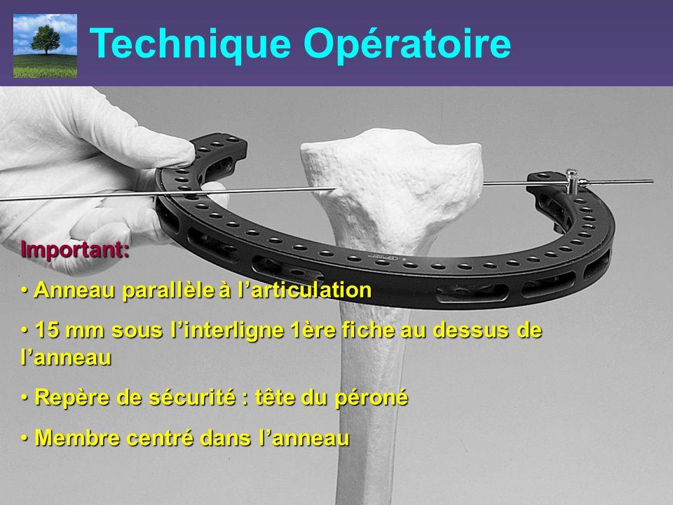 Important: Anneau parallèle à larticulation Anneau parallèle à larticulation 15 mm sous linterligne 1ère fiche au dessus de lanneau 15 mm sous linterl