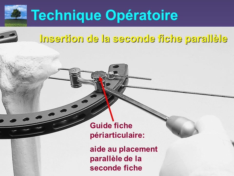 Insertion de la seconde fiche parallèle Guide fiche périarticulaire: aide au placement parallèle de la seconde fiche Technique Opératoire