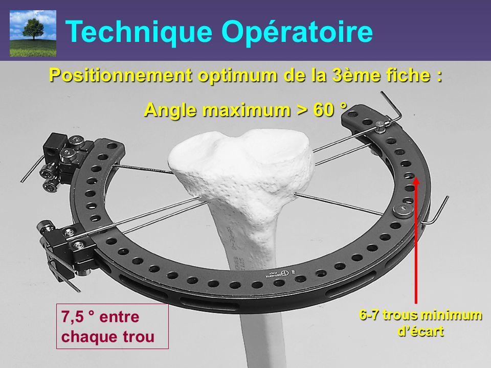 Positionnement optimum de la 3ème fiche : Angle maximum > 60 ° Technique Opératoire 6-7 trous minimum décart 7,5 ° entre chaque trou
