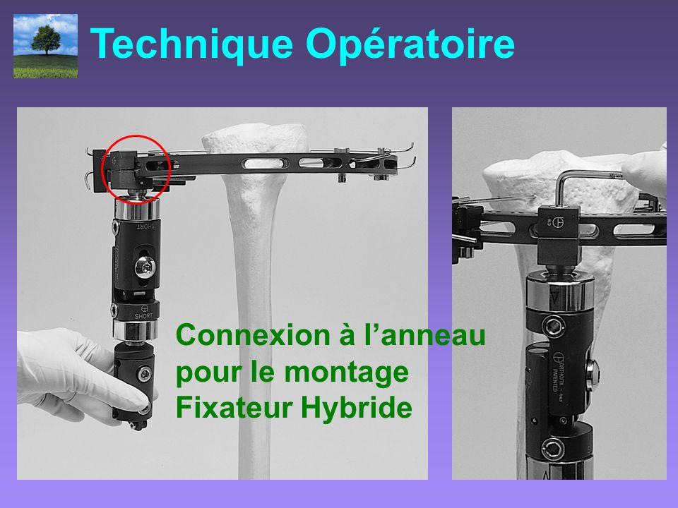 Connexion à lanneau pour le montage Fixateur Hybride Technique Opératoire