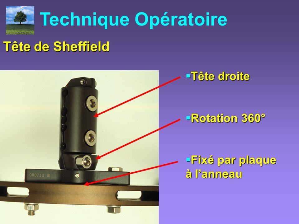 La Tête de Sheffield Tête droite Tête droite Rotation 360° Rotation 360° Fixé par plaque à lanneau Fixé par plaque à lanneau Technique Opératoire Tête