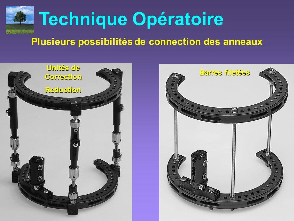 Unités de Correction Reduction Barres filetées Plusieurs possibilités de connection des anneaux Technique Opératoire