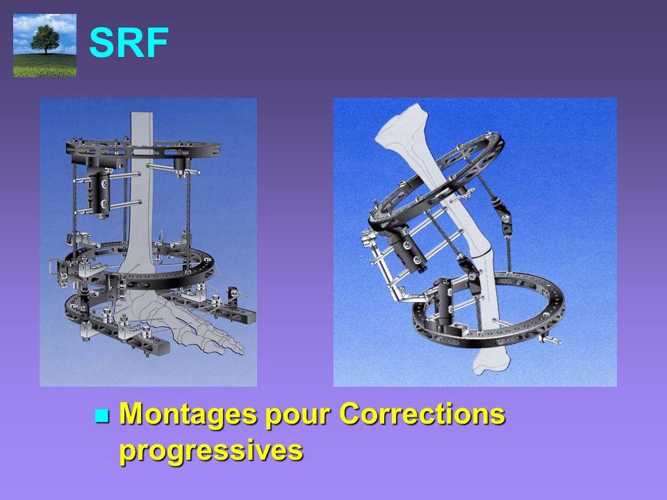 SRF Montages pour Corrections progressives Montages pour Corrections progressives