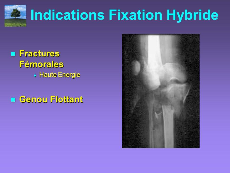 Indications Fixation Hybride Fractures Fémorales Fractures Fémorales Haute Energie Haute Energie Genou Flottant Genou Flottant