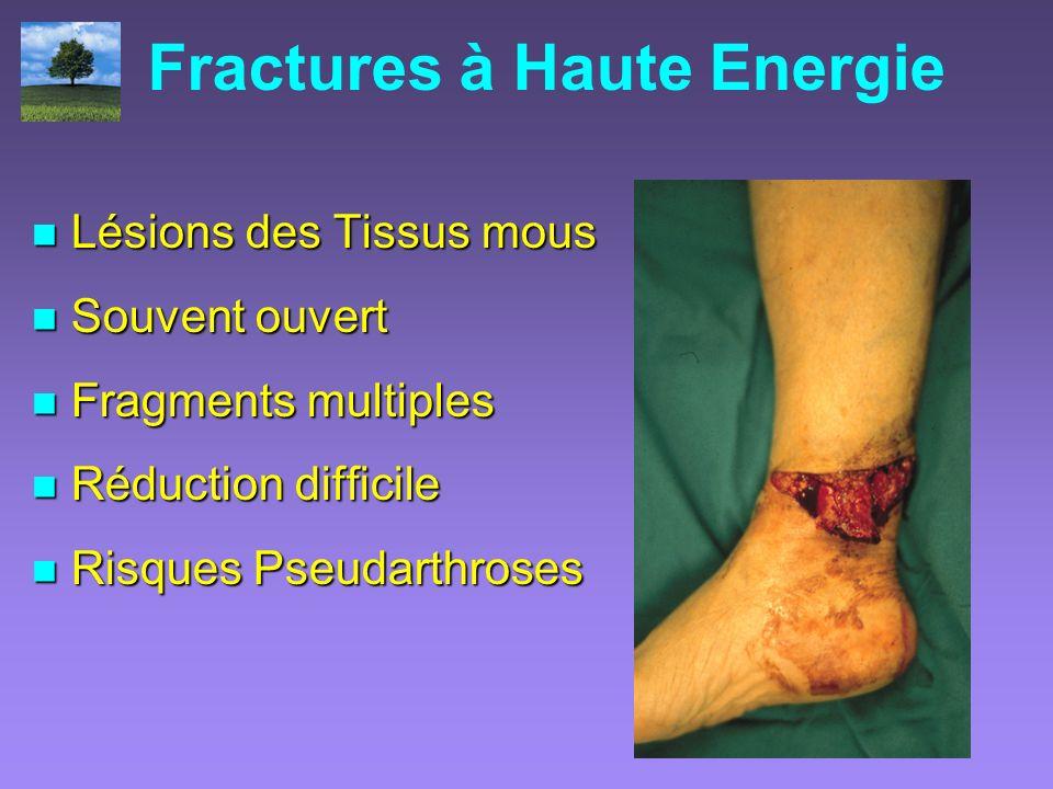 Fractures à Haute Energie Lésions des Tissus mous Lésions des Tissus mous Souvent ouvert Souvent ouvert Fragments multiples Fragments multiples Réduct