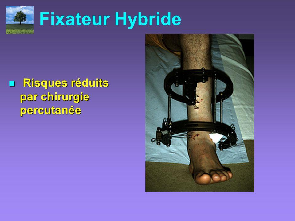 Fixateur Hybride Risques réduits par chirurgie percutanée Risques réduits par chirurgie percutanée