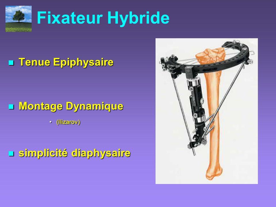Fixateur Hybride Tenue Epiphysaire Tenue Epiphysaire Montage Dynamique Montage Dynamique (Ilizarov)(Ilizarov) simplicité diaphysaire simplicité diaphy