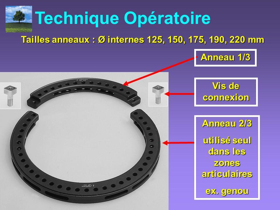 Anneau 2/3 utilisé seul dans les zones articulaires ex. genou Anneau 1/3 Vis de connexion Tailles anneaux : Ø internes 125, 150, 175, 190, 220 mm Tail