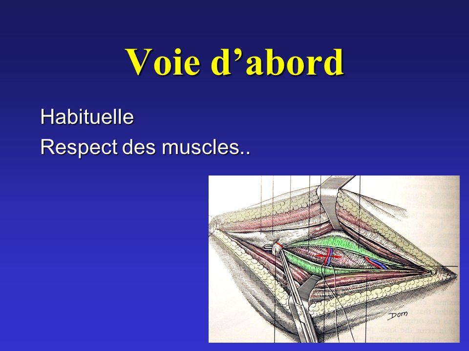 Voie dabord Habituelle Respect des muscles..