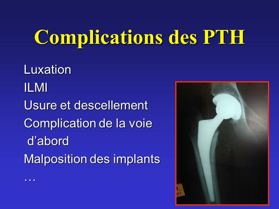 Complications des PTH LuxationILMI Usure et descellement Complication de la voie dabord dabord Malposition des implants …
