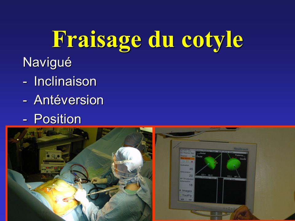 Fraisage du cotyle Navigué -Inclinaison -Antéversion -Position