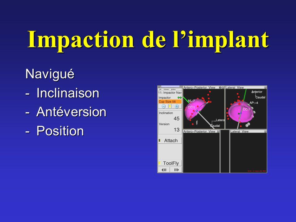 Impaction de limplant Navigué -Inclinaison -Antéversion -Position