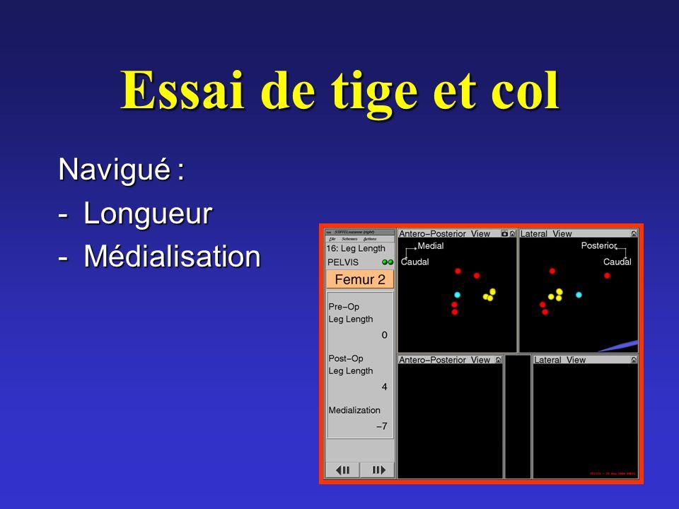Essai de tige et col Navigué : -Longueur -Médialisation