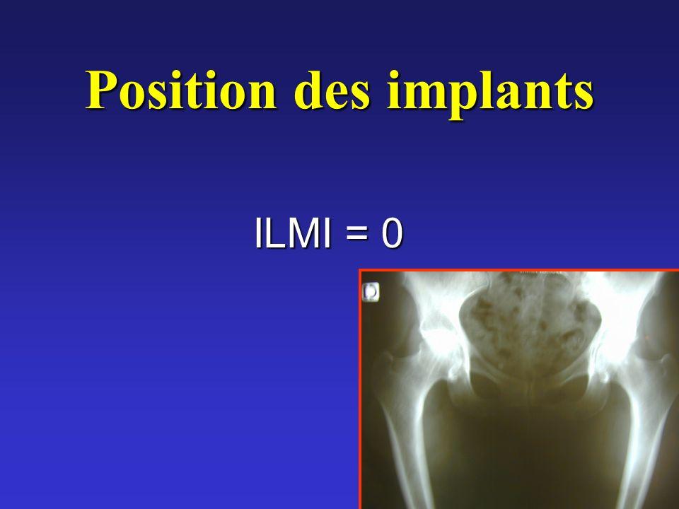Position des implants ILMI = 0