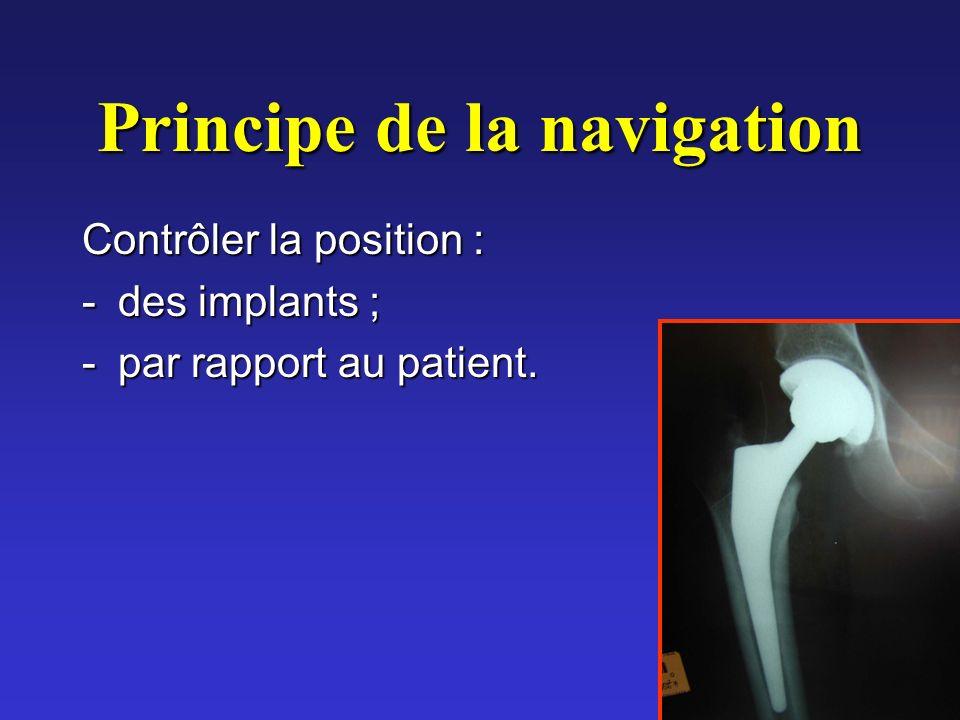 Principe de la navigation Contrôler la position : -des implants ; -par rapport au patient.