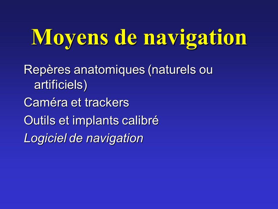 Moyens de navigation Repères anatomiques (naturels ou artificiels) Caméra et trackers Outils et implants calibré Logiciel de navigation