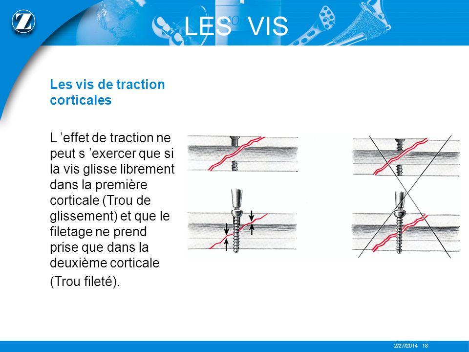 2/27/2014 18 LES VIS Les vis de traction corticales L effet de traction ne peut s exercer que si la vis glisse librement dans la première corticale (T