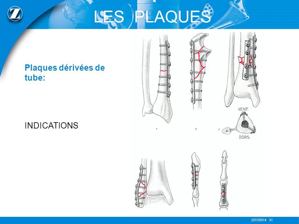 2/27/2014 31 LES PLAQUES Plaques dérivées de tube: INDICATIONS