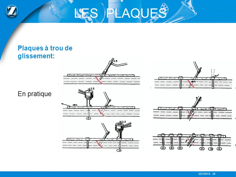 2/27/2014 34 Plaques à trou de glissement: En pratique LES PLAQUES
