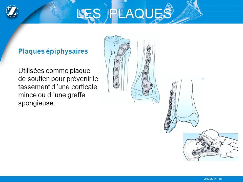 2/27/2014 36 LES PLAQUES Plaques épiphysaires Utilisées comme plaque de soutien pour prévenir le tassement d une corticale mince ou d une greffe spong
