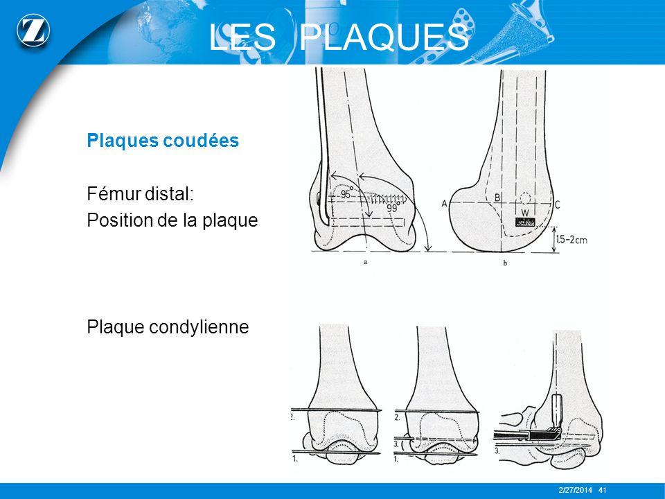 2/27/2014 41 LES PLAQUES Plaques coudées Fémur distal: Position de la plaque Plaque condylienne