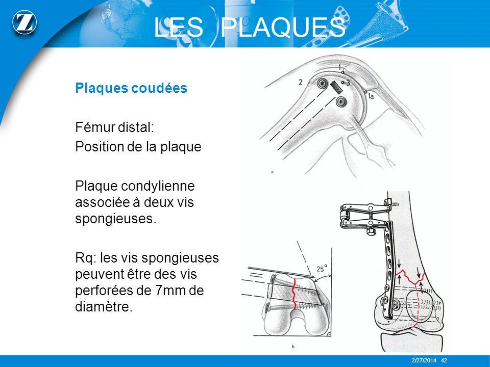 2/27/2014 42 LES PLAQUES Plaques coudées Fémur distal: Position de la plaque Plaque condylienne associée à deux vis spongieuses. Rq: les vis spongieus