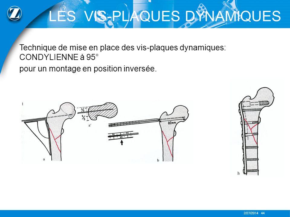 2/27/2014 44 Technique de mise en place des vis-plaques dynamiques: CONDYLIENNE à 95° pour un montage en position inversée. LES VIS-PLAQUES DYNAMIQUES