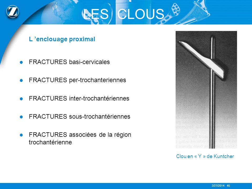 2/27/2014 45 LES CLOUS L enclouage proximal FRACTURES basi-cervicales FRACTURES per-trochanteriennes FRACTURES inter-trochantériennes FRACTURES sous-t
