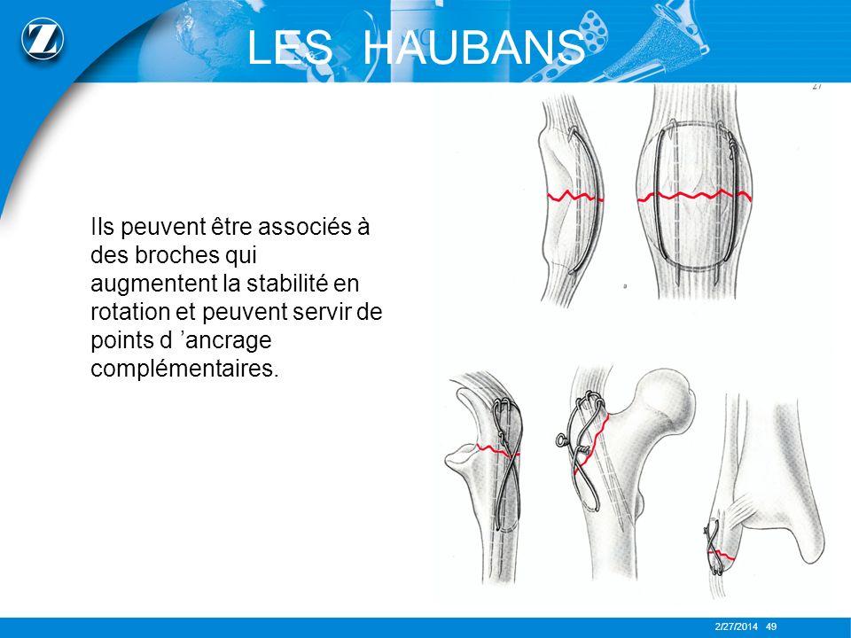2/27/2014 49 LES HAUBANS Ils peuvent être associés à des broches qui augmentent la stabilité en rotation et peuvent servir de points d ancrage complém