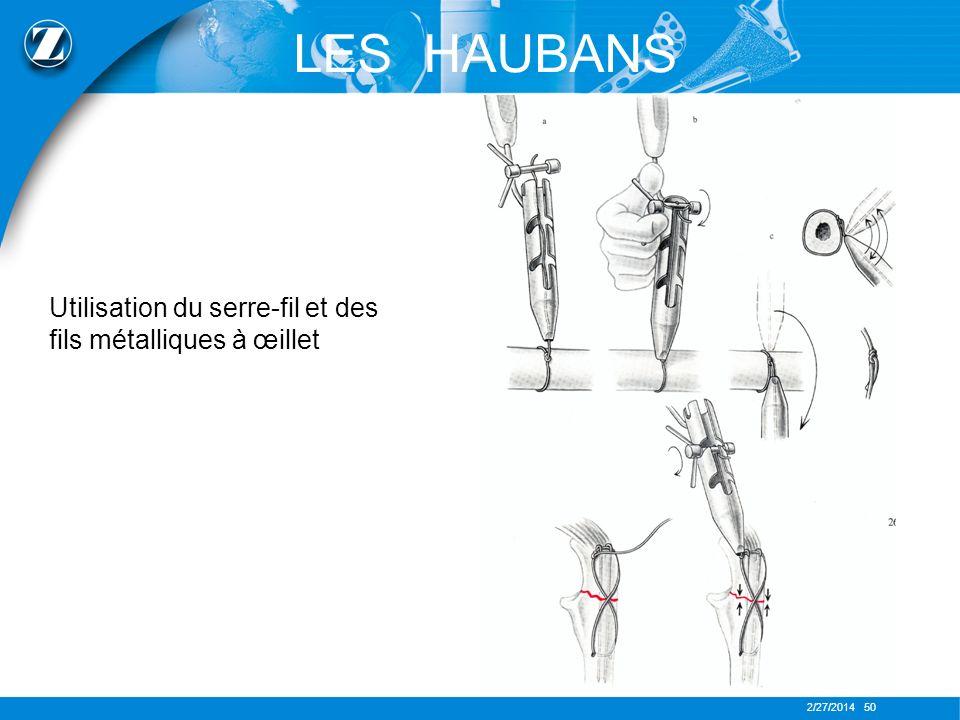 2/27/2014 50 LES HAUBANS Utilisation du serre-fil et des fils métalliques à œillet