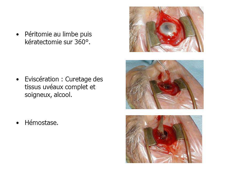 Péritomie au limbe puis kératectomie sur 360°. Eviscération : Curetage des tissus uvéaux complet et soigneux, alcool. Hémostase.