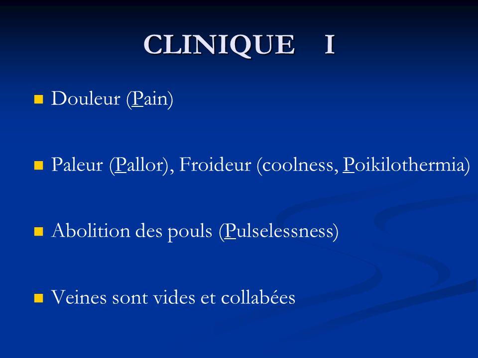 Douleur (Pain) Paleur (Pallor), Froideur (coolness, Poikilothermia) Abolition des pouls (Pulselessness) Veines sont vides et collabées CLINIQUE I