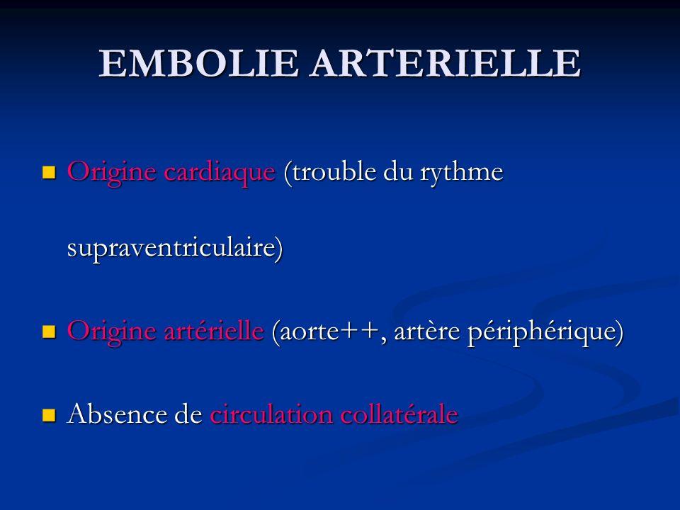 EMBOLIE ARTERIELLE Origine cardiaque (trouble du rythme supraventriculaire) Origine cardiaque (trouble du rythme supraventriculaire) Origine artériell