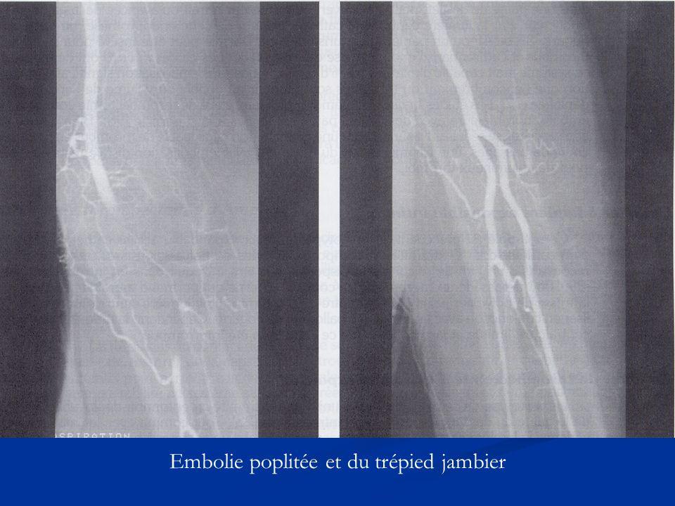 Embolie poplitée et du trépied jambier