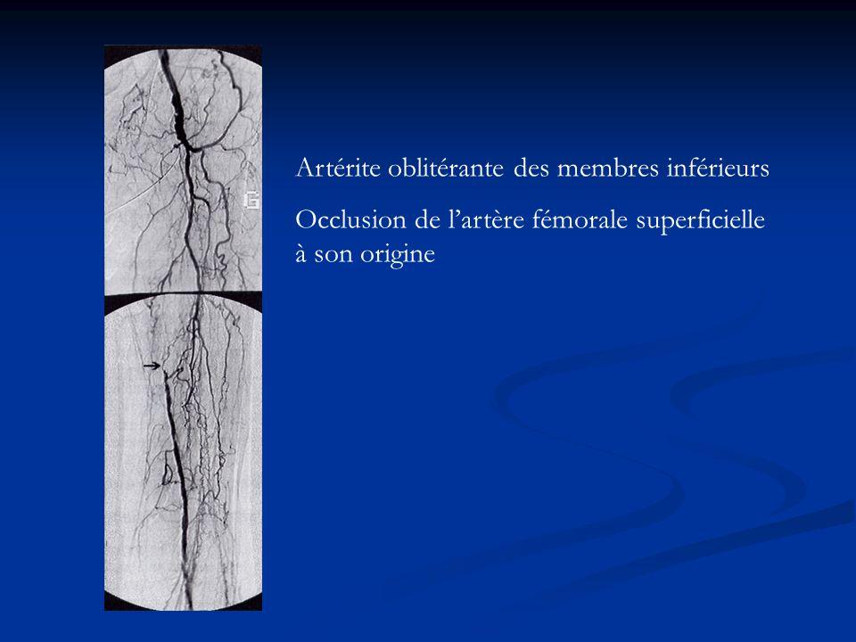 Artérite oblitérante des membres inférieurs Occlusion de lartère fémorale superficielle à son origine
