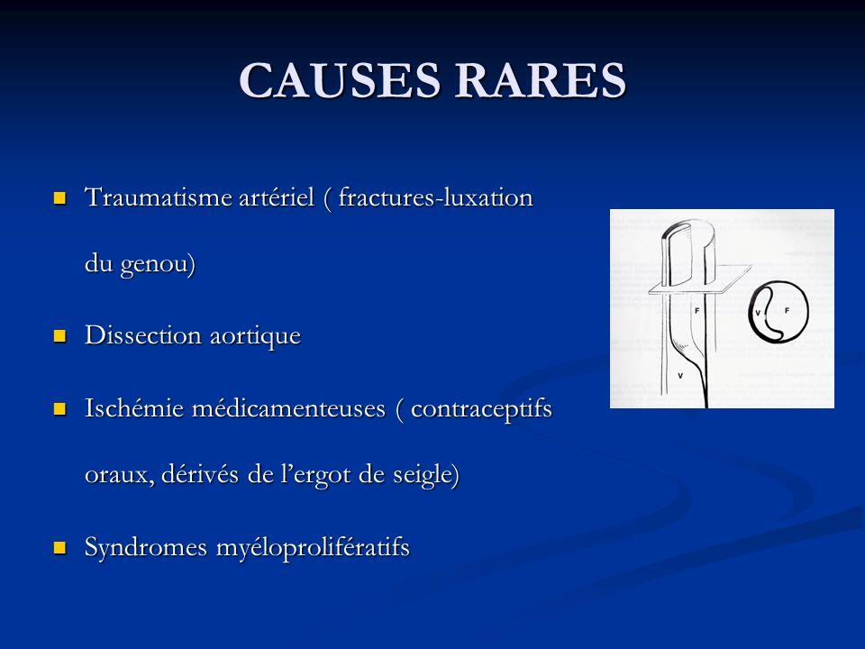 CAUSES RARES Traumatisme artériel ( fractures-luxation du genou) Traumatisme artériel ( fractures-luxation du genou) Dissection aortique Dissection ao