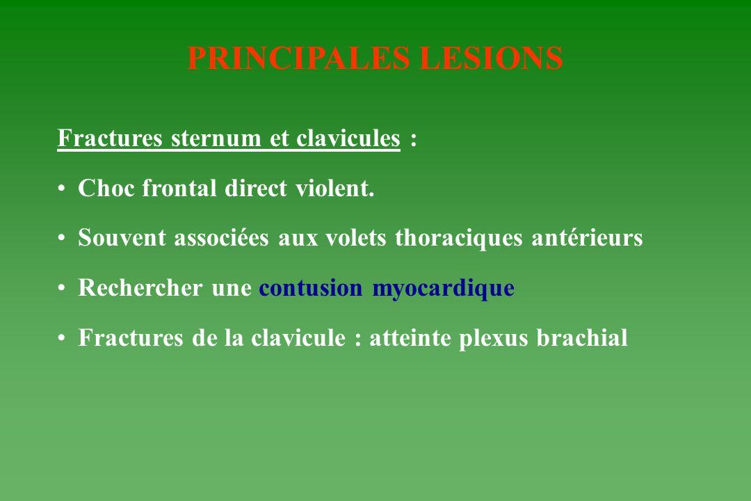 PRINCIPALES LESIONS Fractures sternum et clavicules : Choc frontal direct violent. Souvent associées aux volets thoraciques antérieurs Rechercher une