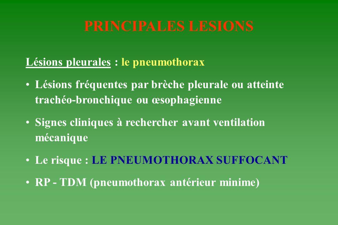 PRINCIPALES LESIONS Lésions pleurales : le pneumothorax Lésions fréquentes par brèche pleurale ou atteinte trachéo-bronchique ou œsophagienne Signes c