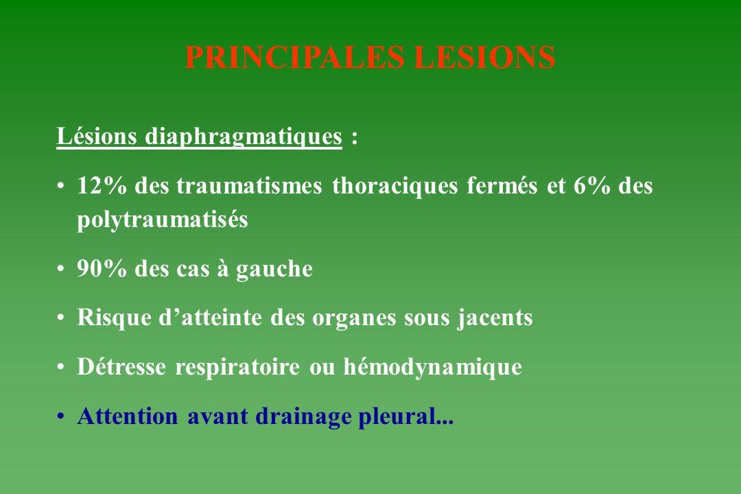 PRINCIPALES LESIONS Lésions diaphragmatiques : 12% des traumatismes thoraciques fermés et 6% des polytraumatisés 90% des cas à gauche Risque datteinte