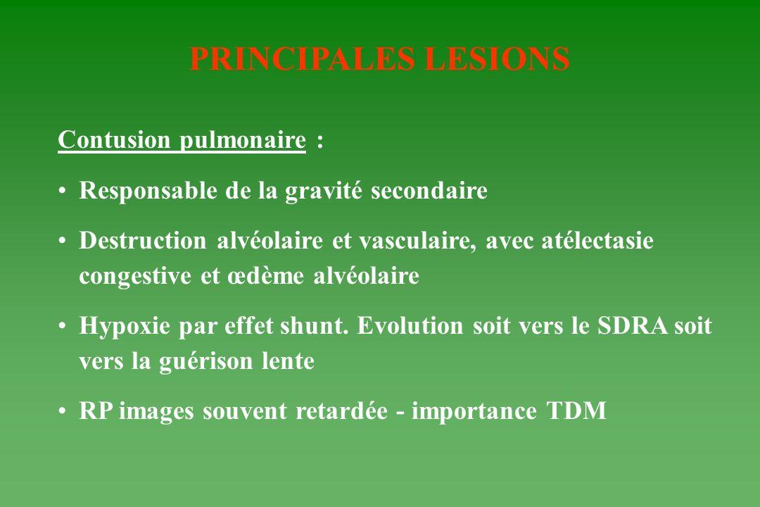 PRINCIPALES LESIONS Contusion pulmonaire : Responsable de la gravité secondaire Destruction alvéolaire et vasculaire, avec atélectasie congestive et œ