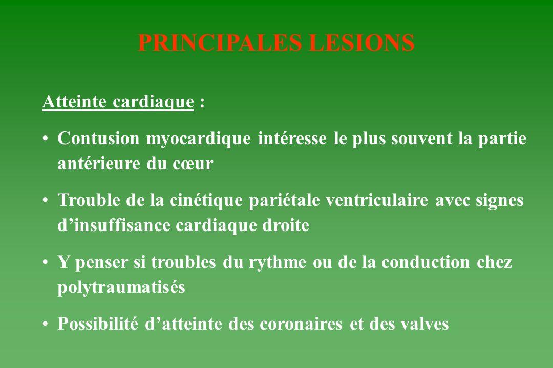 PRINCIPALES LESIONS Atteinte cardiaque : Contusion myocardique intéresse le plus souvent la partie antérieure du cœur Trouble de la cinétique pariétal